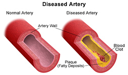 About Coronary Artery Disease CAD in Ahmedabad Zydus Hospital